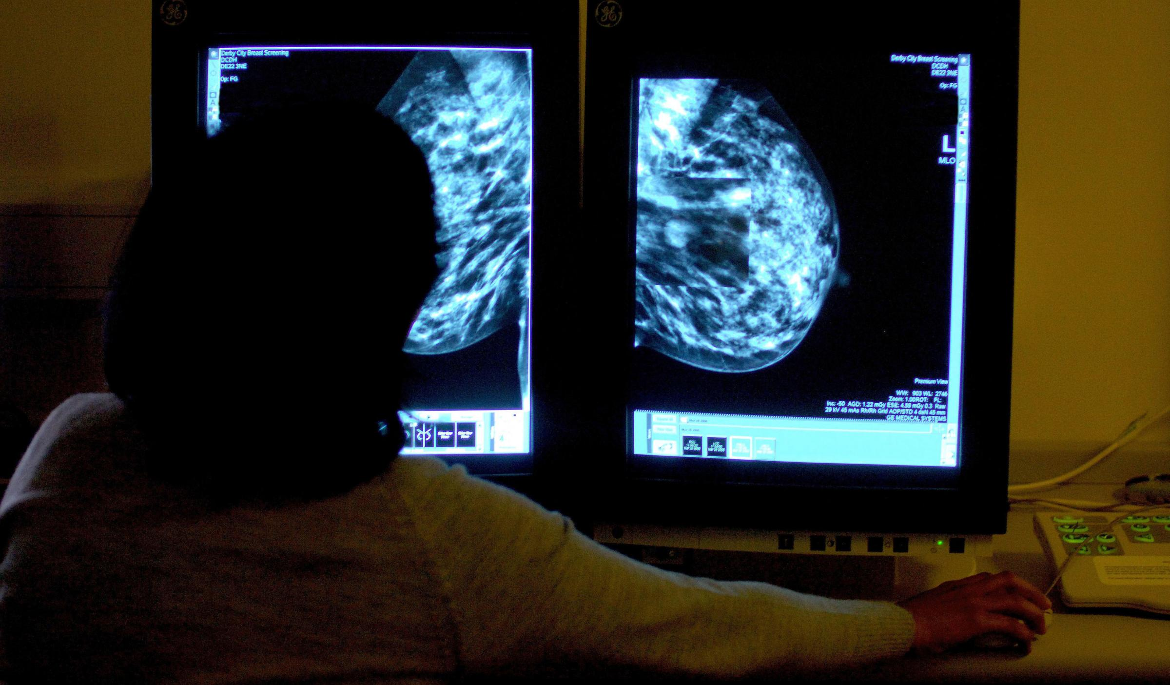 New deal caused NICE to finally approve life-extending breast cancer drug